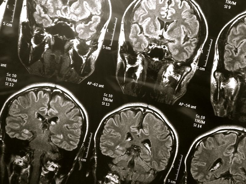 MRT мозга